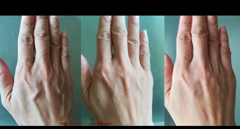 【体験】ハンドピュレナ使用2ヶ月半後の画像を撮ってみた